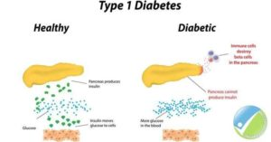 diabetes smart patch