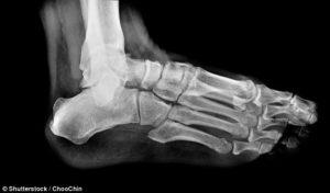 colour X-ray